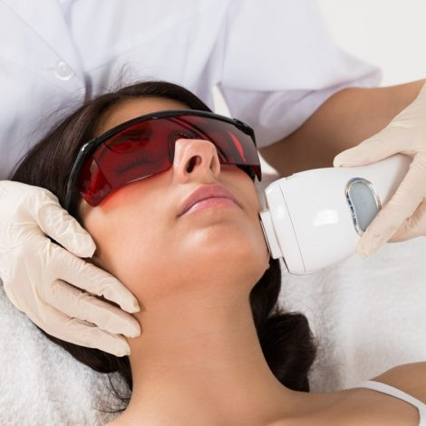 Laser Treatment on a Woman's Face - Oh Darling Skin & Beauty Bar Mangerton, NSW